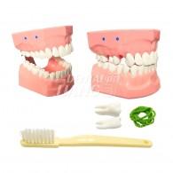 Dental Model (환자 설명용 모델) #AT-A9